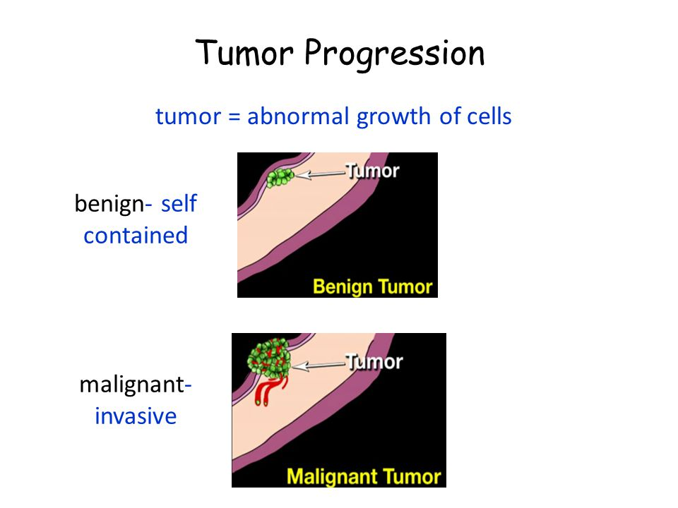 Tumor Progression tumor = abnormal growth of cells