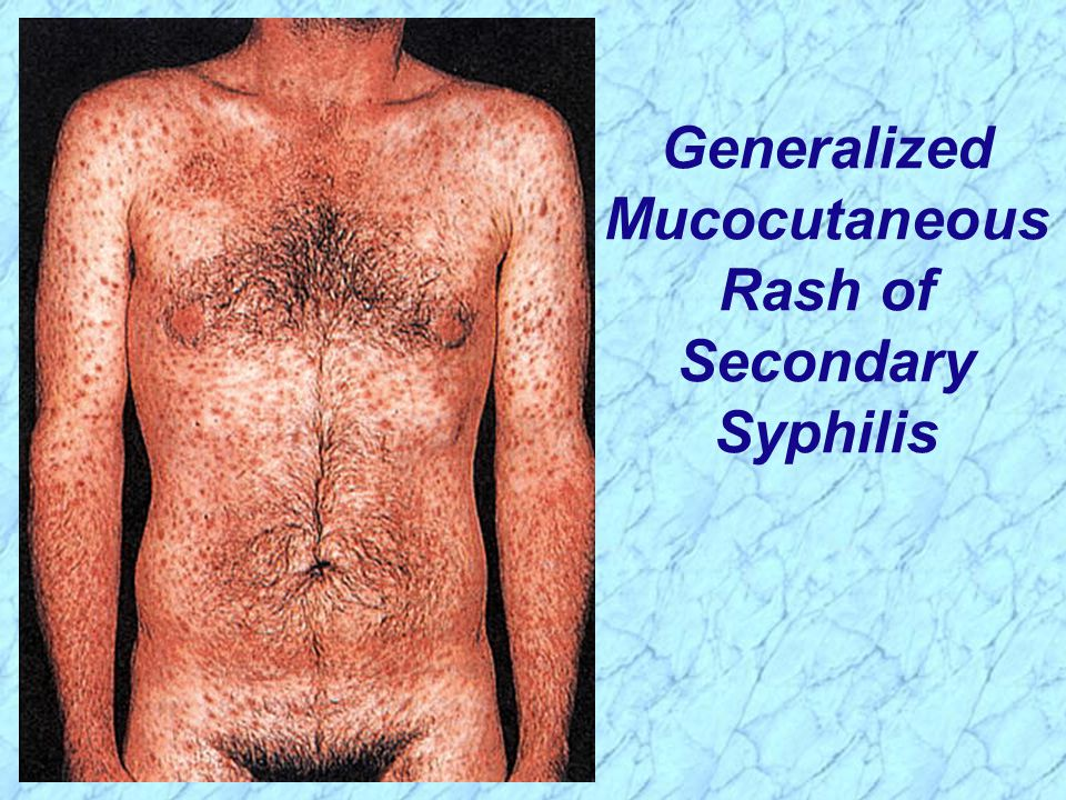 Primary Syphilis Rash Treponema Borre...