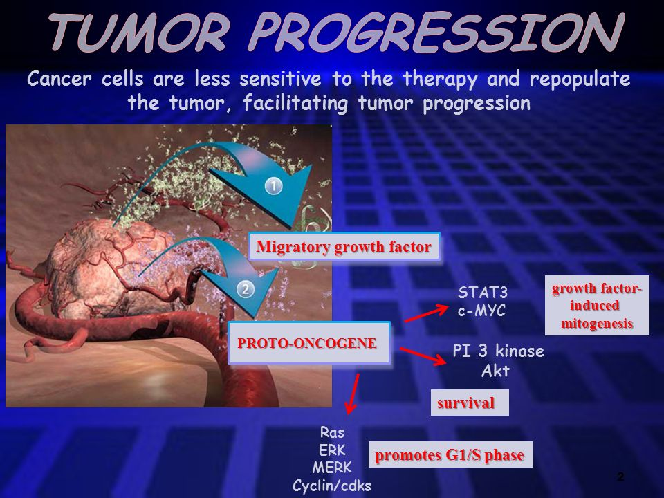 TUMOR PROGRESSION Cancer cells are less sensitive to the therapy and repopulate the tumor, facilitating tumor progression.