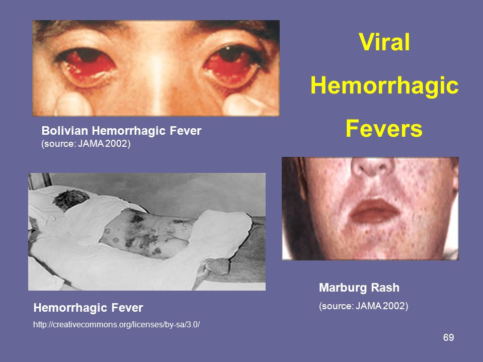 viral hemorrhagic fever and ebola patients Viral hemorrhagic fevers: neurologic complications  from recovered patients have been used to treat ebola patients  viral hemorrhagic fever viruses are.