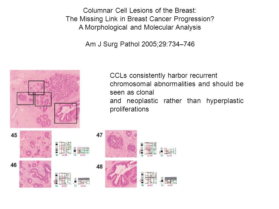 Columnar Cell Lesions of the Breast: