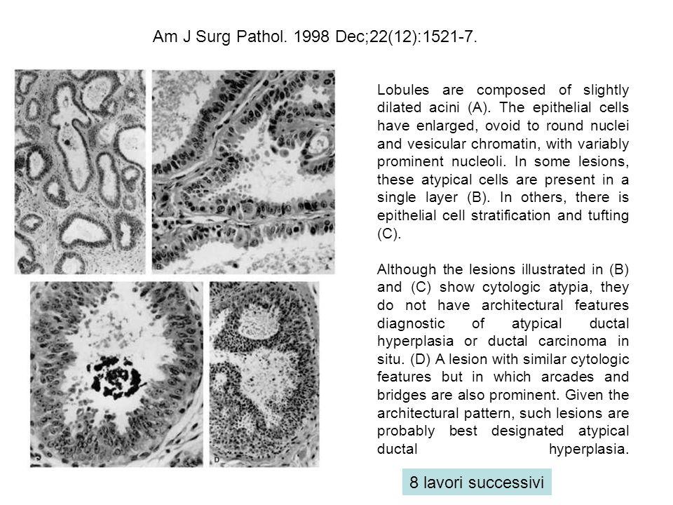Am J Surg Pathol. 1998 Dec;22(12):1521-7.