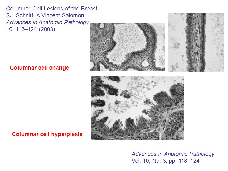 Columnar Cell Lesions of the Breast