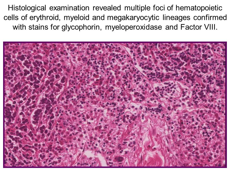 Histological examination revealed multiple foci of hematopoietic