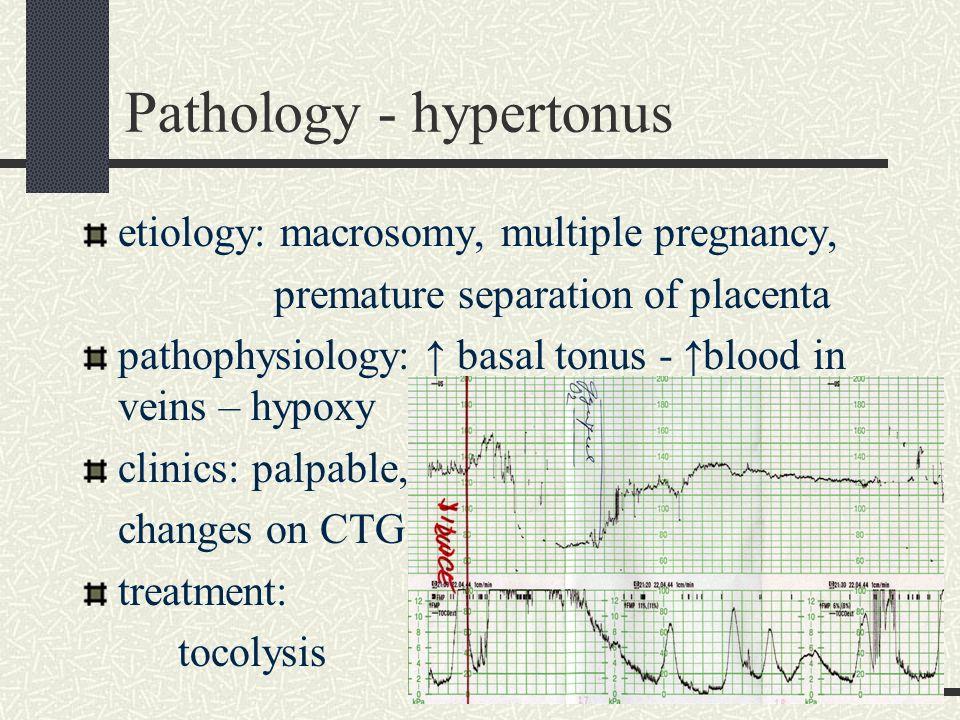 Pathology - hypertonus