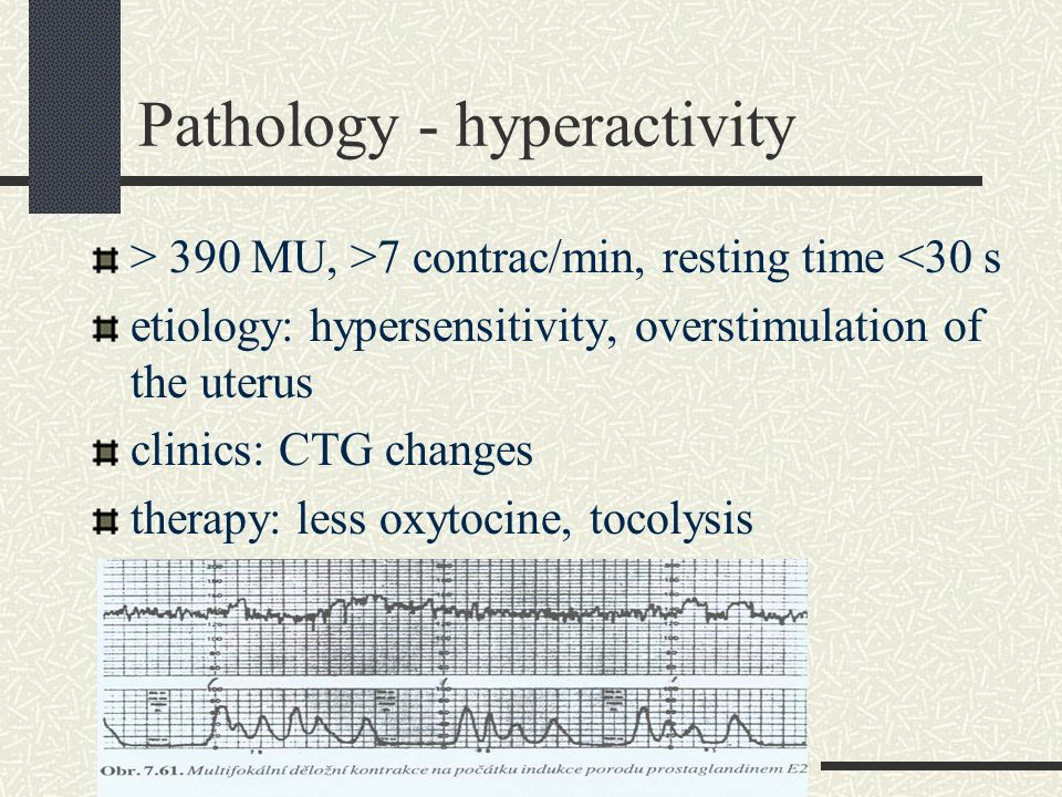 Pathology - hyperactivity