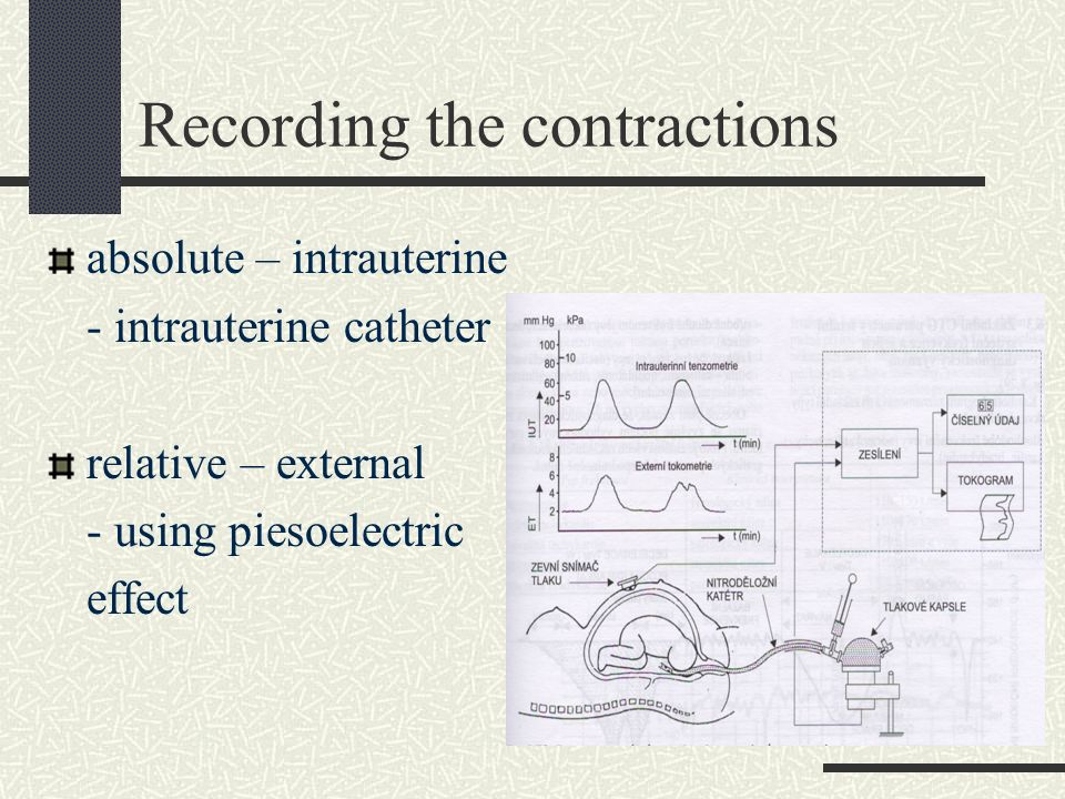 Recording the contractions