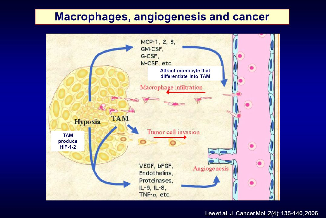 Macrophages, angiogenesis and cancer