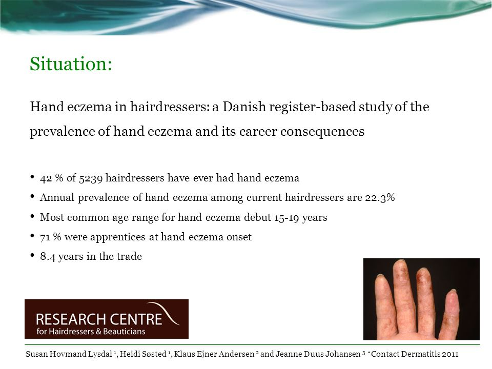 Situation:Hand eczema in hairdressers: a Danish register-based study of the prevalence of hand eczema and its career consequences.