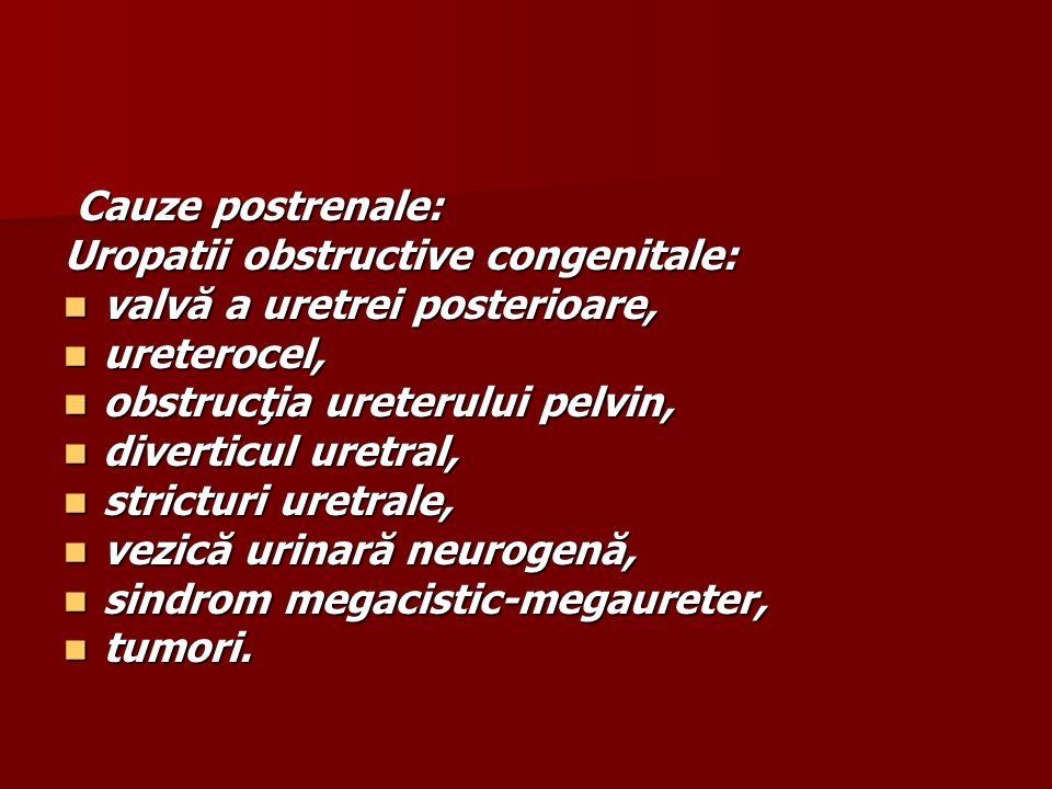 Cauze postrenale: Uropatii obstructive congenitale: valvă a uretrei posterioare, ureterocel, obstrucţia ureterului pelvin,
