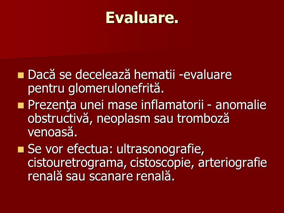 Evaluare. Dacă se decelează hematii -evaluare pentru glomerulonefrită.