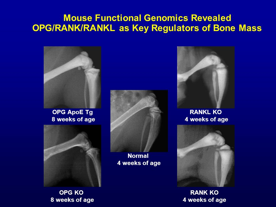 Mouse Functional Genomics Revealed OPG/RANK/RANKL as Key Regulators of Bone Mass