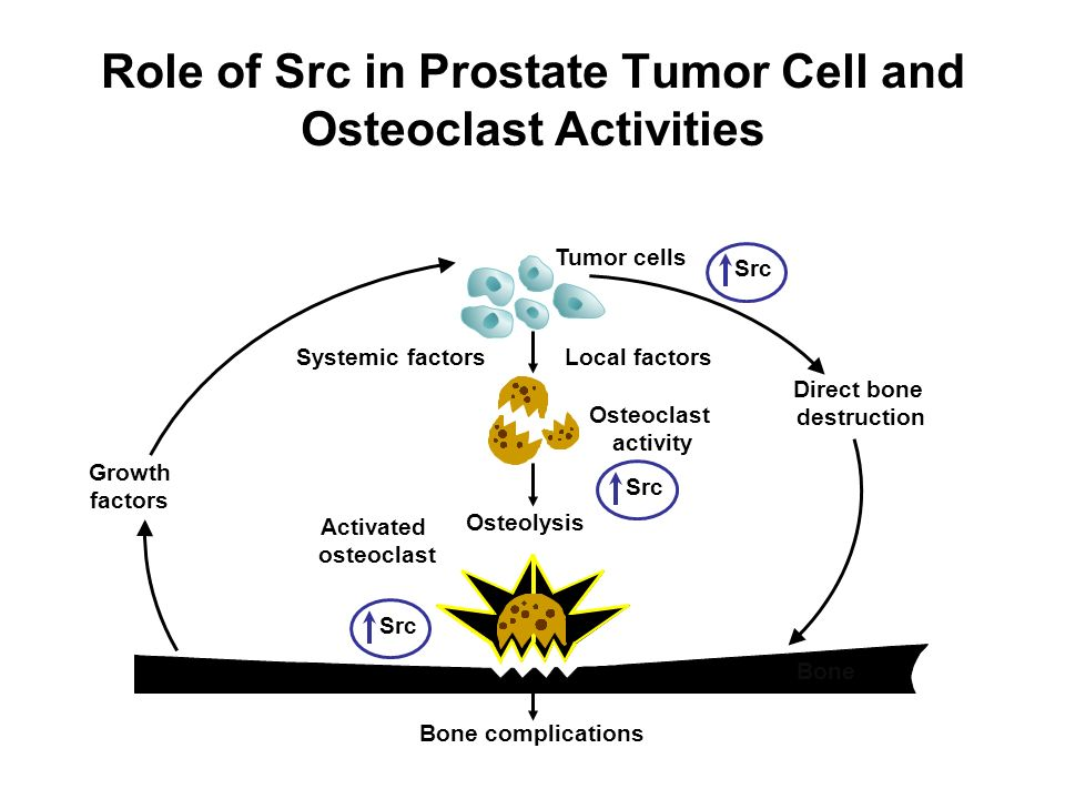 Role of Src in Prostate Tumor Cell and Osteoclast Activities