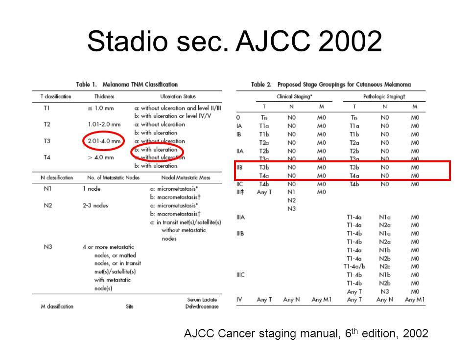 Stadio sec. AJCC 2002 AJCC Cancer staging manual, 6th edition, 2002