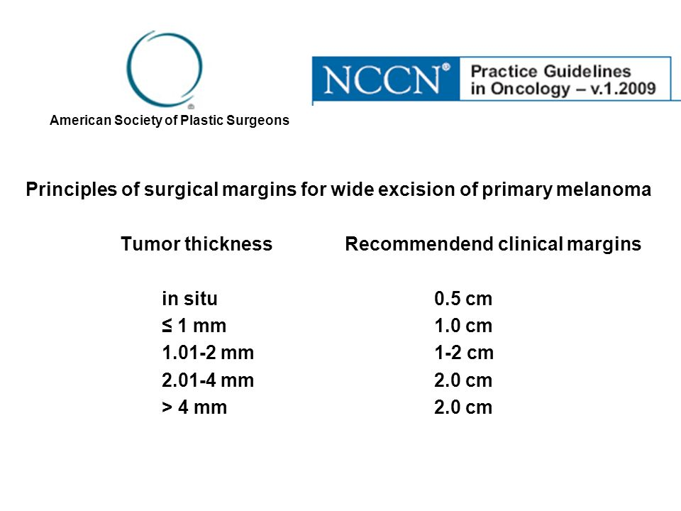 Principles of surgical margins for wide excision of primary melanoma