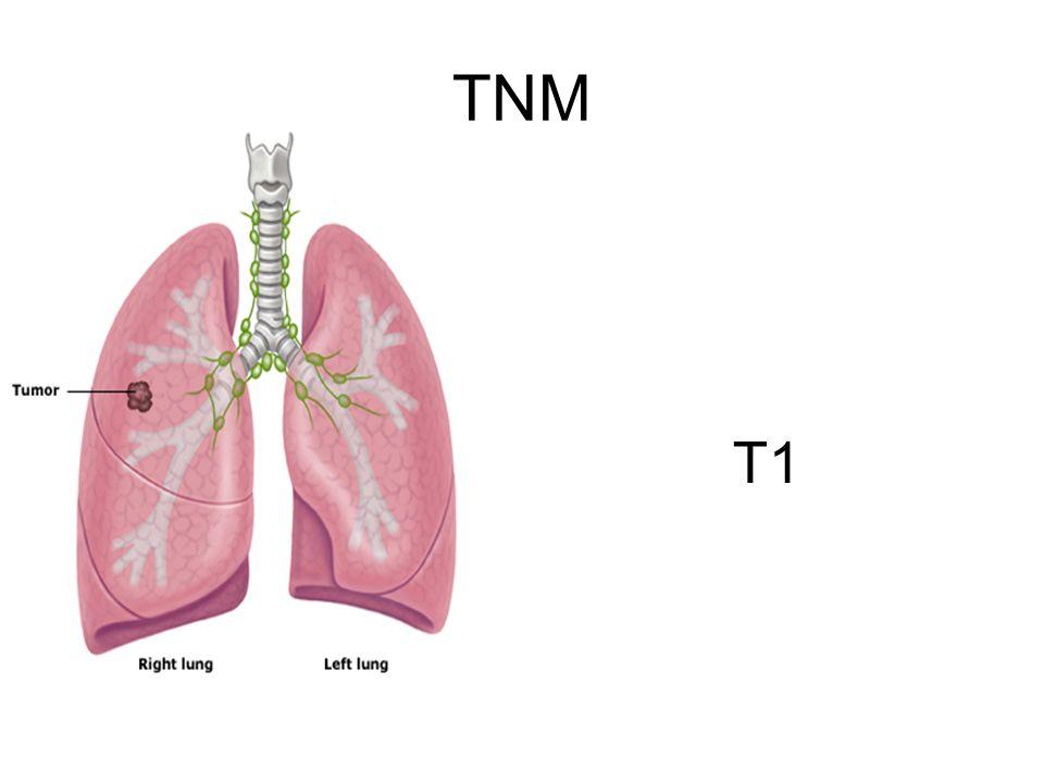 TNM T1