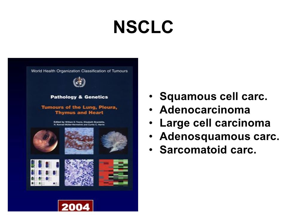 NSCLC Squamous cell carc. Adenocarcinoma Large cell carcinoma