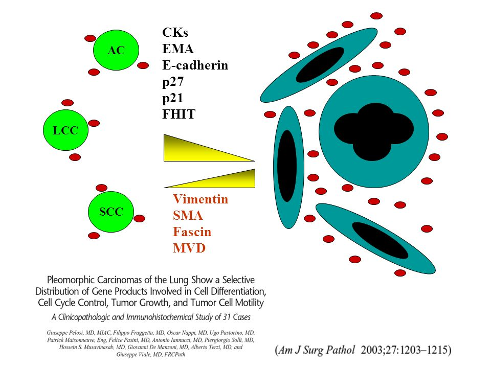 AC LCC SCC CKs EMA E-cadherin p27 p21 FHIT Vimentin SMA Fascin MVD 69