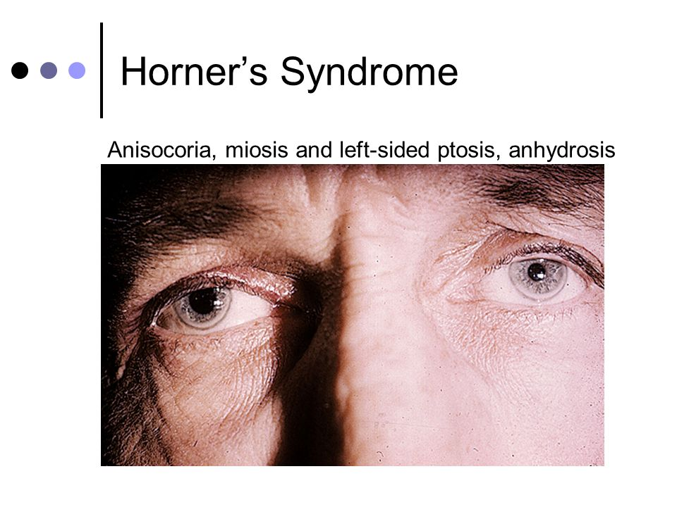Horner's Syndrome Anisocoria, miosis and left-sided ptosis, anhydrosis