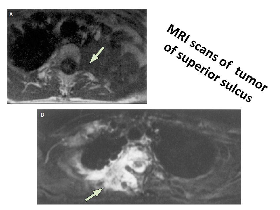 MRI scans of tumor of superior sulcus