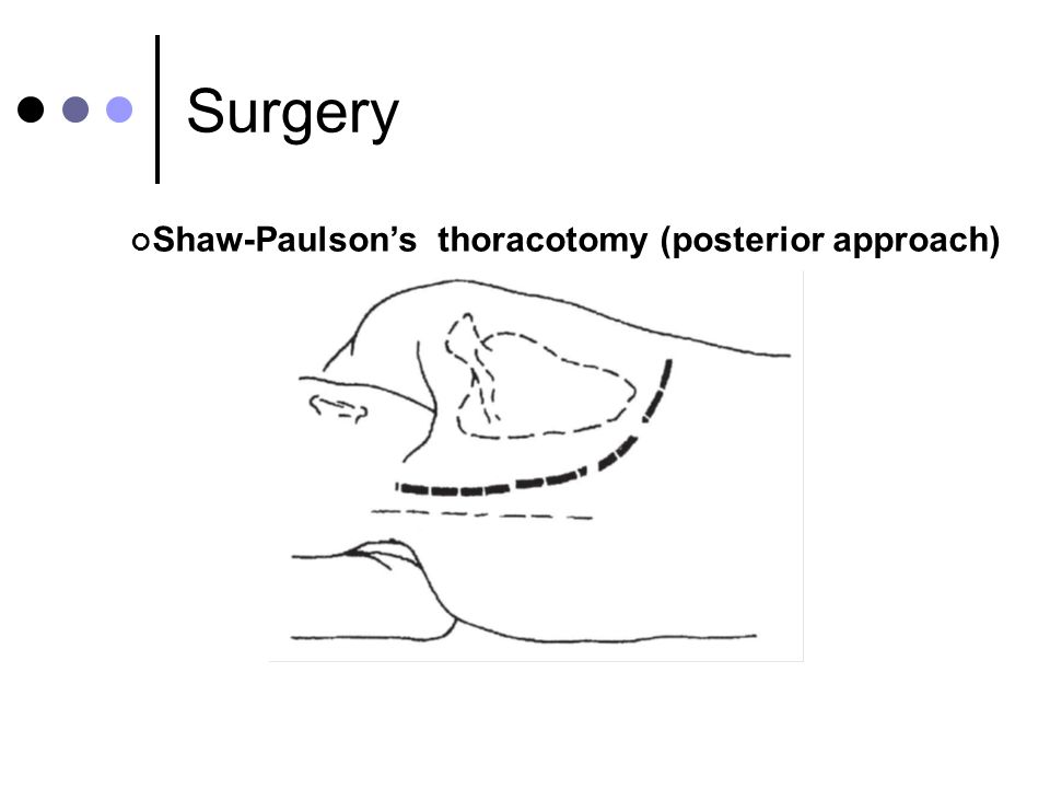 Surgery Shaw-Paulson's thoracotomy (posterior approach)