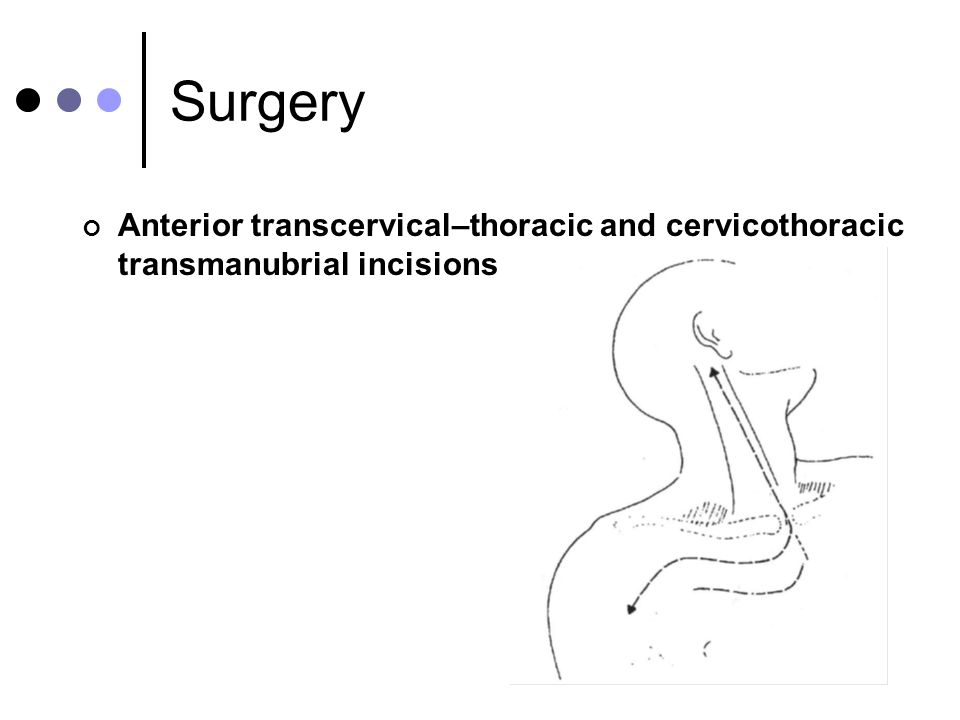 Surgery Anterior transcervical–thoracic and cervicothoracic transmanubrial incisions 34