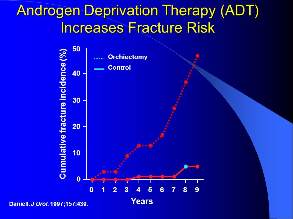 Androgen Deprivation Therapy (ADT) Increases Fracture Risk