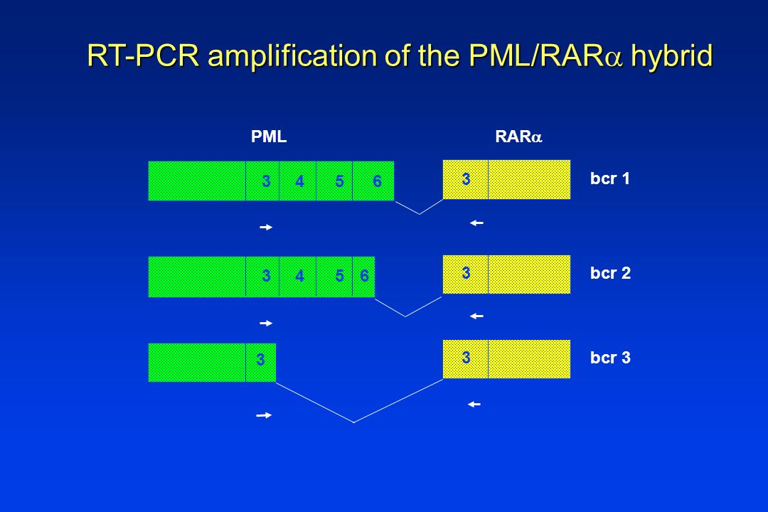 RT-PCR amplification of the PML/RAR hybrid