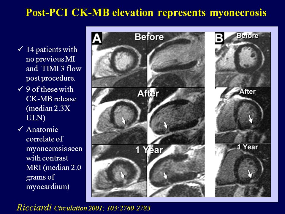Post-PCI CK-MB elevation represents myonecrosis
