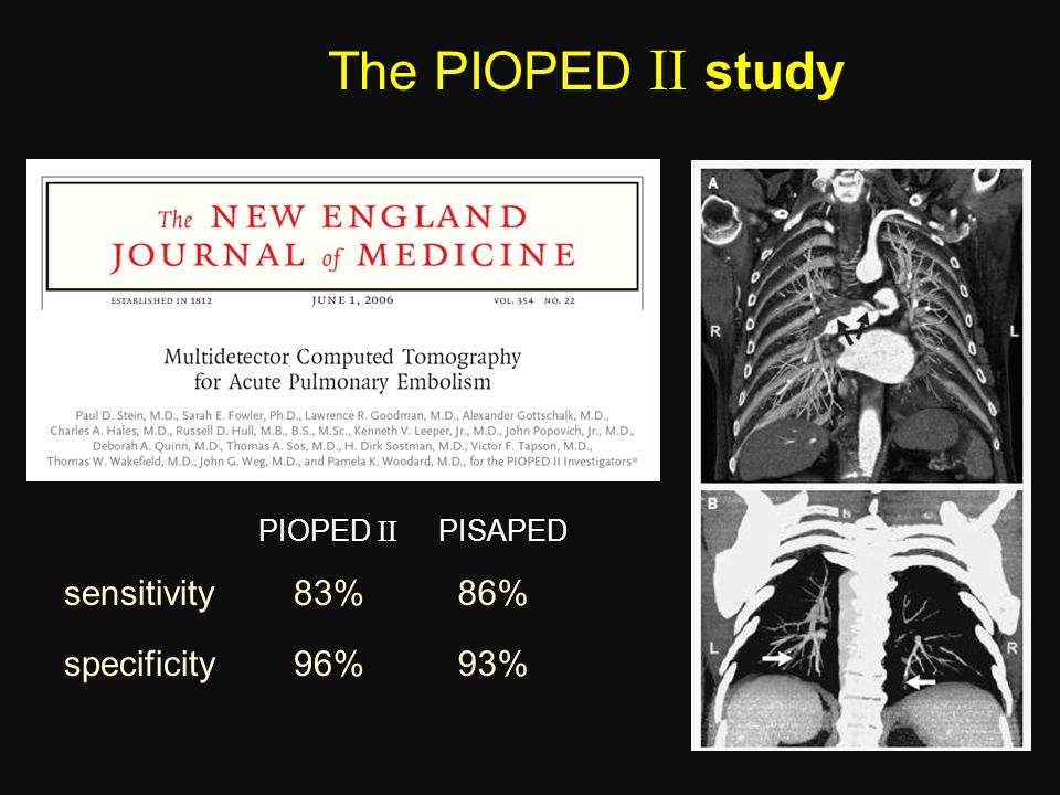 The PIOPED  study sensitivity 83% 86% specificity 96% 93% PIOPED 