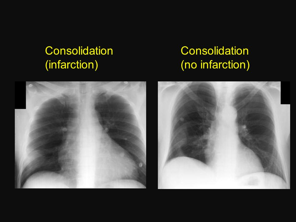 Consolidation (infarction) Consolidation (no infarction)