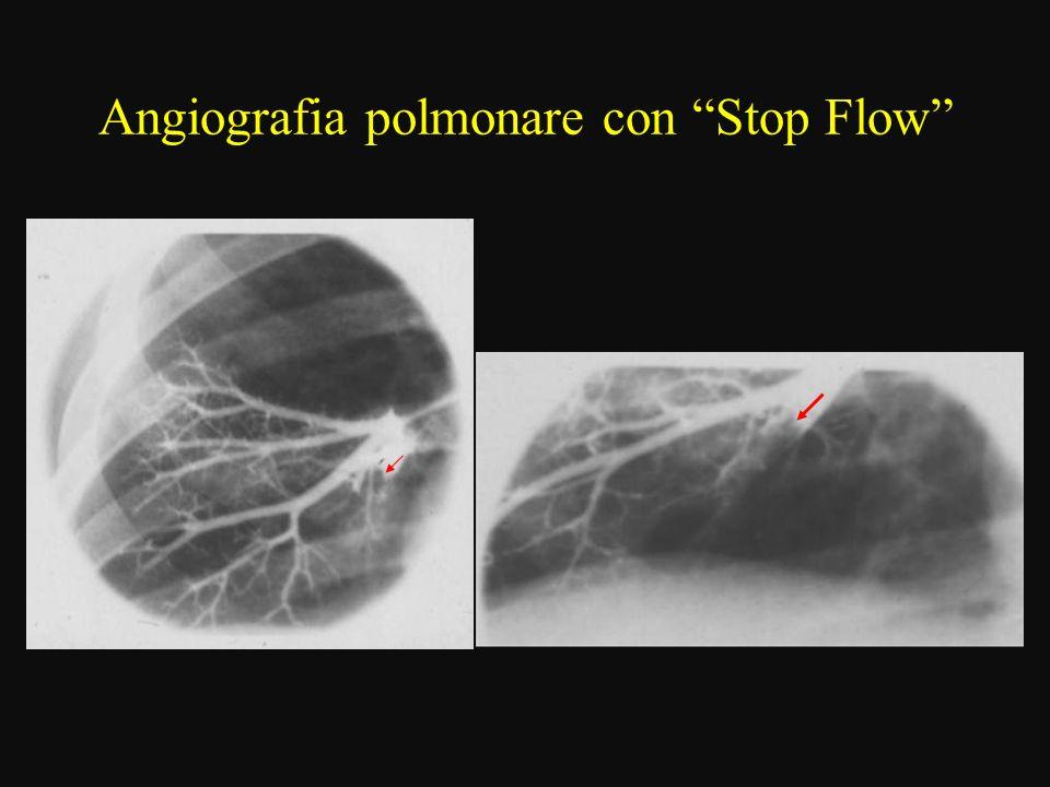 Angiografia polmonare con Stop Flow