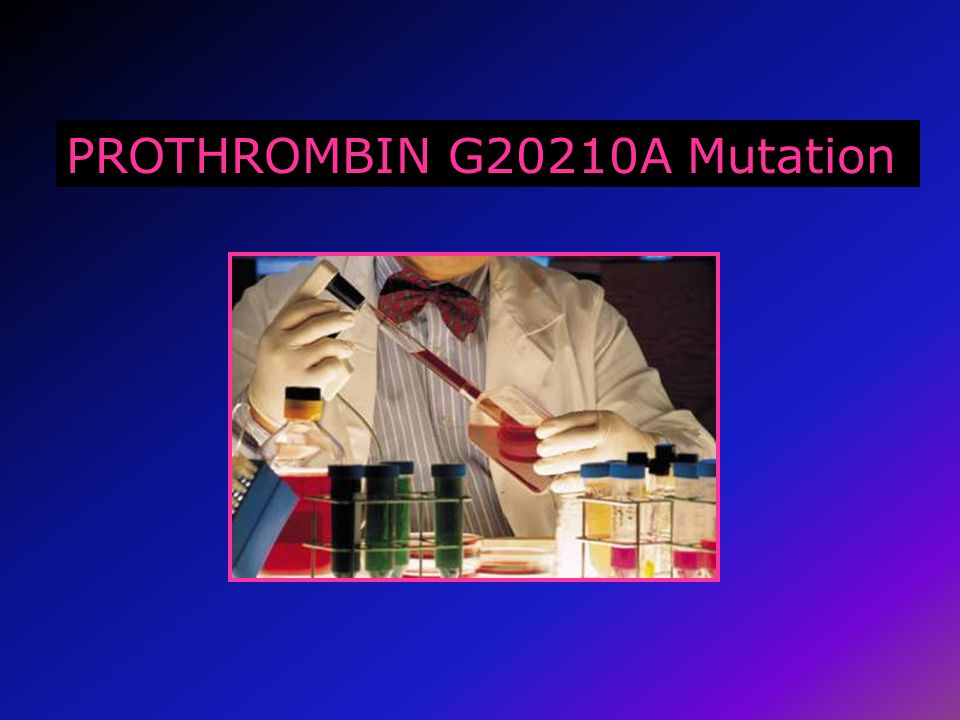 PROTHROMBIN G20210A Mutation
