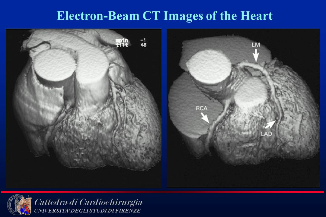 Electron-Beam CT Images of the Heart