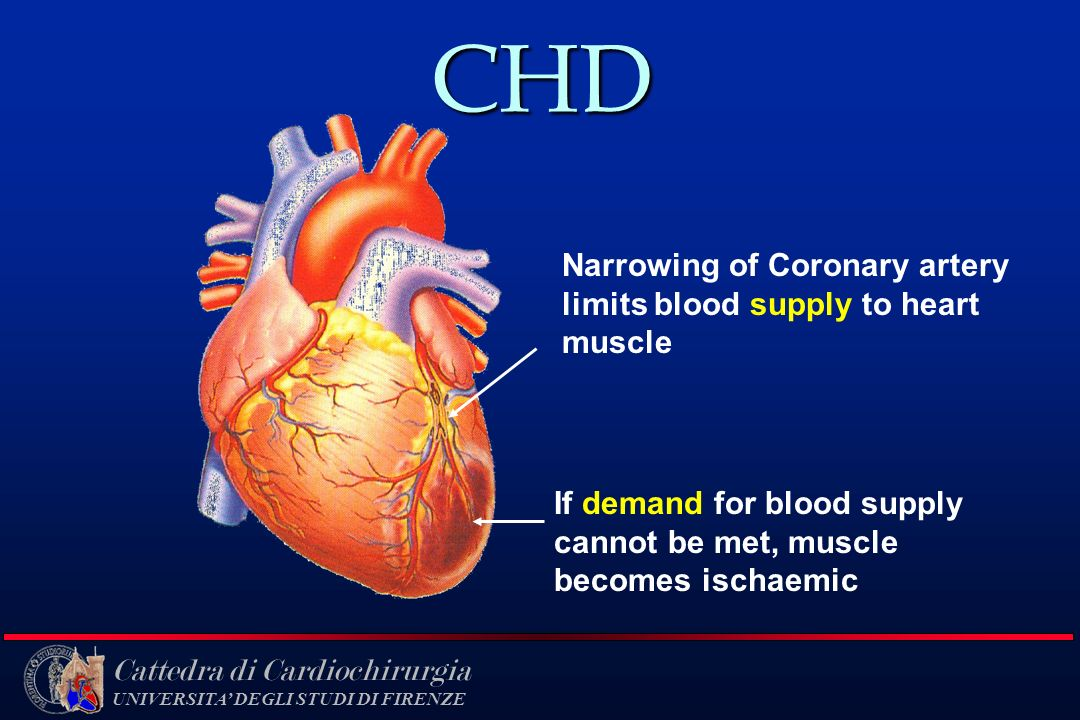 CHD Narrowing of Coronary artery limits blood supply to heart muscle