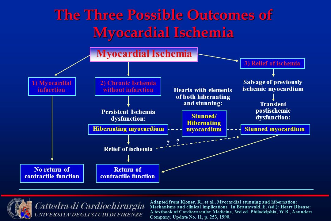 The Three Possible Outcomes of Myocardial Ischemia