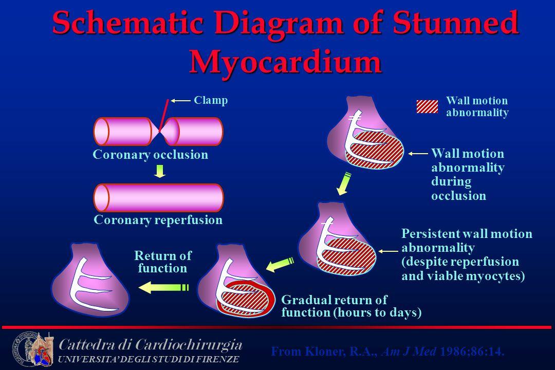 Schematic Diagram of Stunned Myocardium