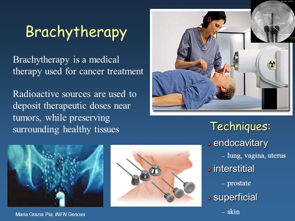 Brachytherapy Techniques:
