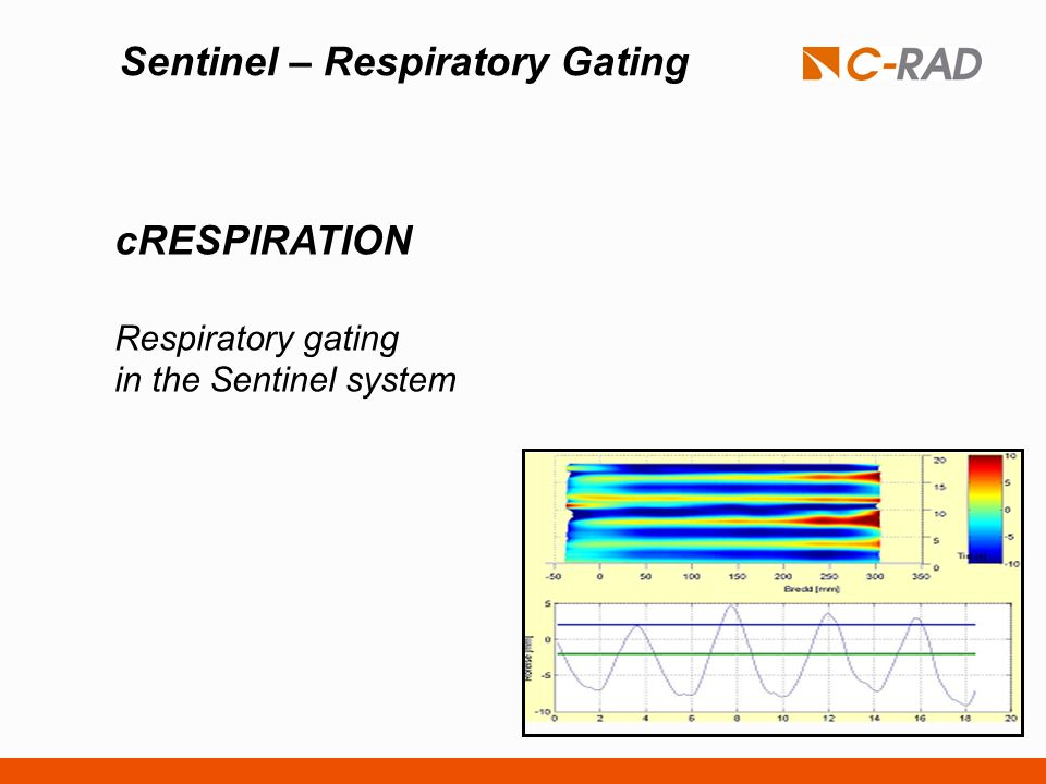 Sentinel – Respiratory Gating