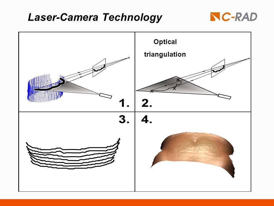 Laser-Camera Technology