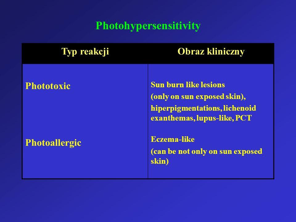 Photohypersensitivity