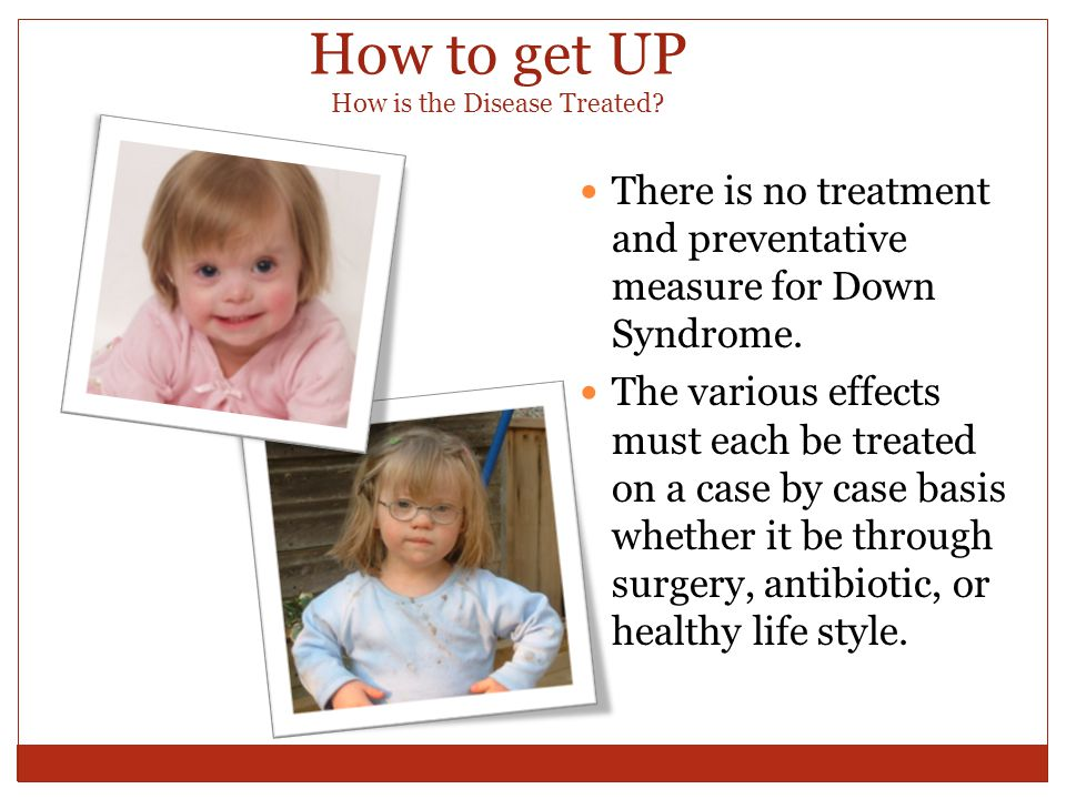 the effects of down syndrome on Students with down syndrome are likely to need support with speech and  language, memory and processing information, social skills and independence,.