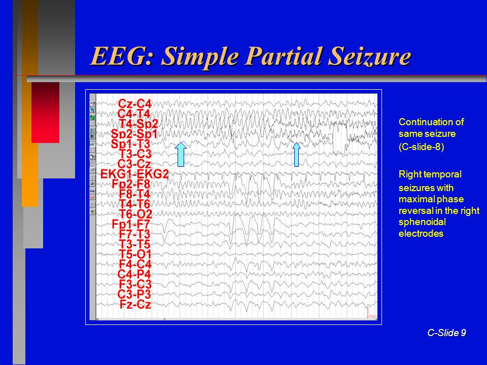 American Epilepsy Society Ppt Download