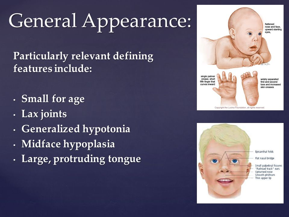 Anesthetic Considerations For Children With Down Syndrome Ppt