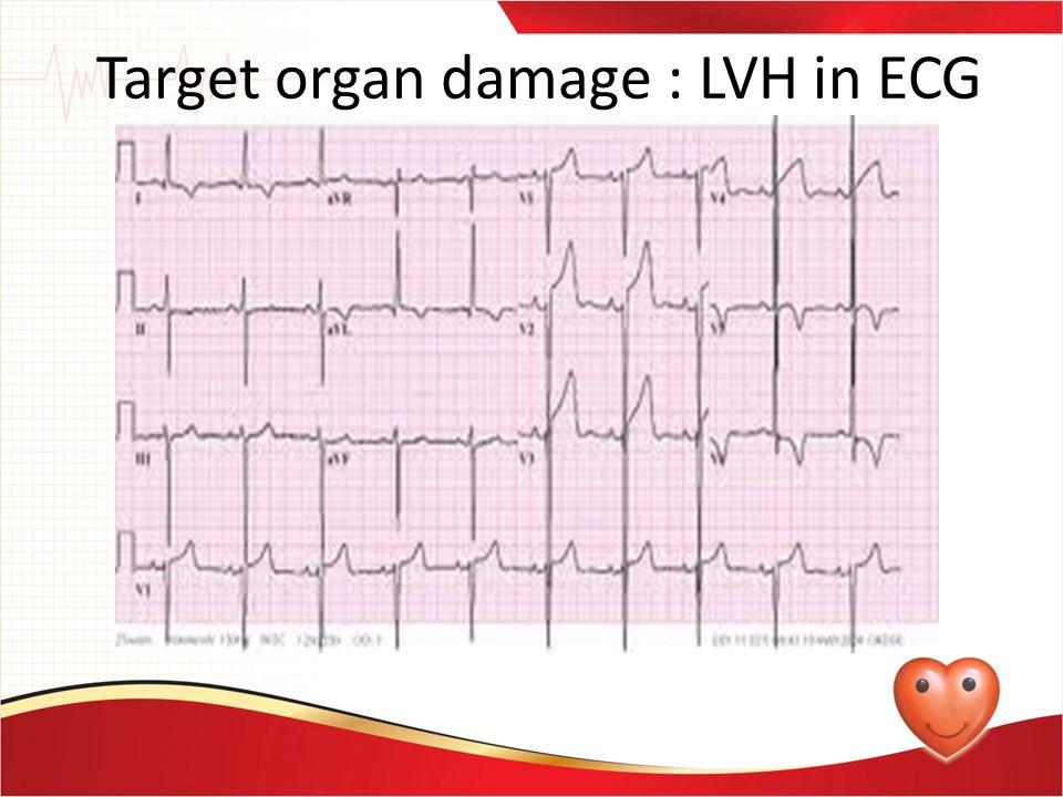 Target organ damage : LVH in ECG