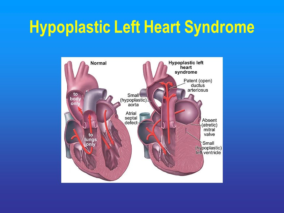 hypoplastic left heart syndrome informative speech Left hand essay left hand essay bionic hand 16922 words | 68 pages ee 4bi6 electrical engineering biomedical capstones 4-27-2009 department of.