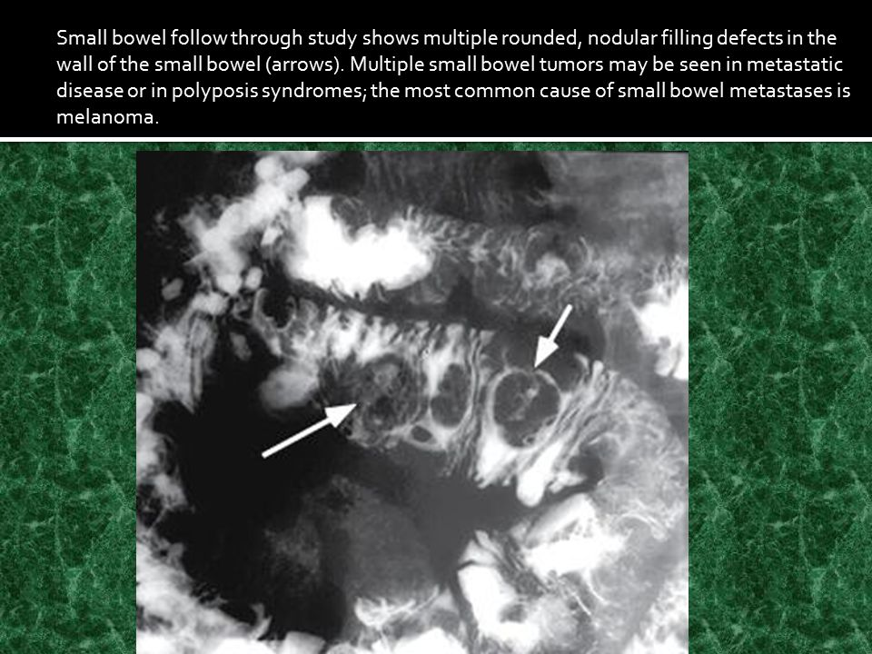 Small bowel follow through study shows multiple rounded, nodular filling defects in the wall of the small bowel (arrows).