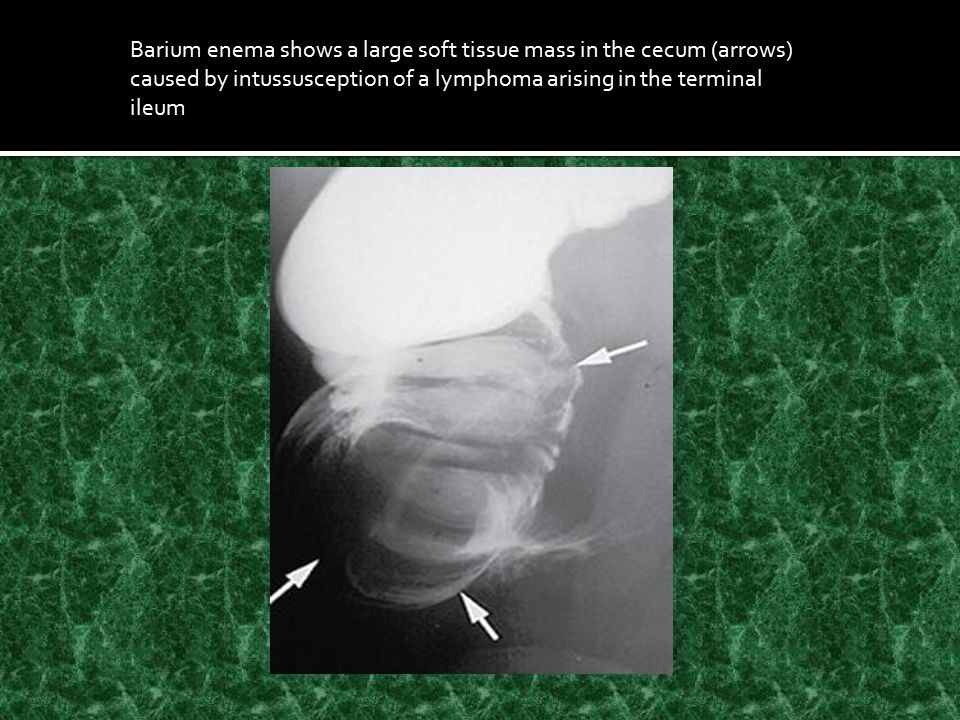 Barium enema shows a large soft tissue mass in the cecum (arrows) caused by intussusception of a lymphoma arising in the terminal ileum