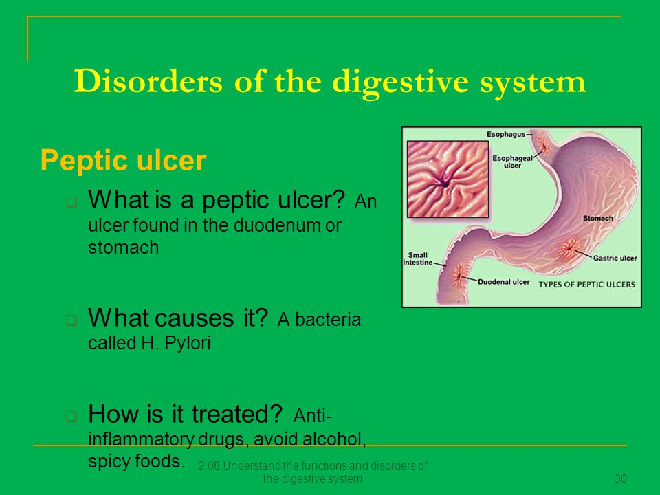 disorders of digestive system 3 digestive disorders are acid reflux, ulcers, and barret's esophagus to name a few acid reflux, commonly known as heart burn, is caused by the.