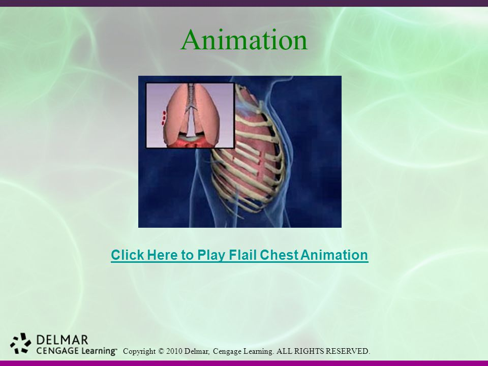 Animation Click Here to Play Flail Chest Animation